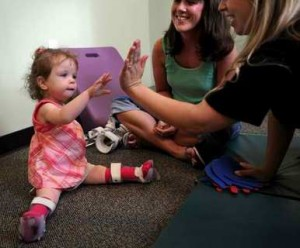 Physical Therapy for a child with Arthrogryposis Image