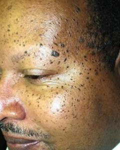 Sun Spots on Face Image