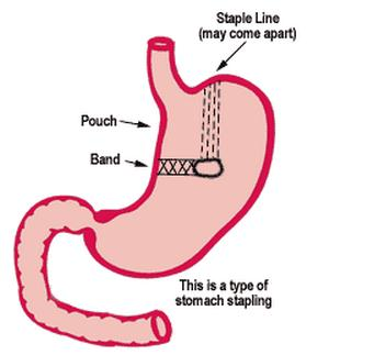 Stomach Stapling Picture Stomach Stapling Surgery