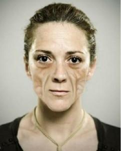 Pics of Lipoatrophy on Face of women