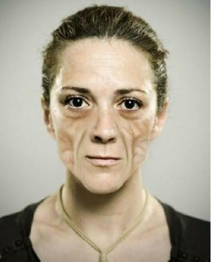 Pics of Lipoatrophy on Face