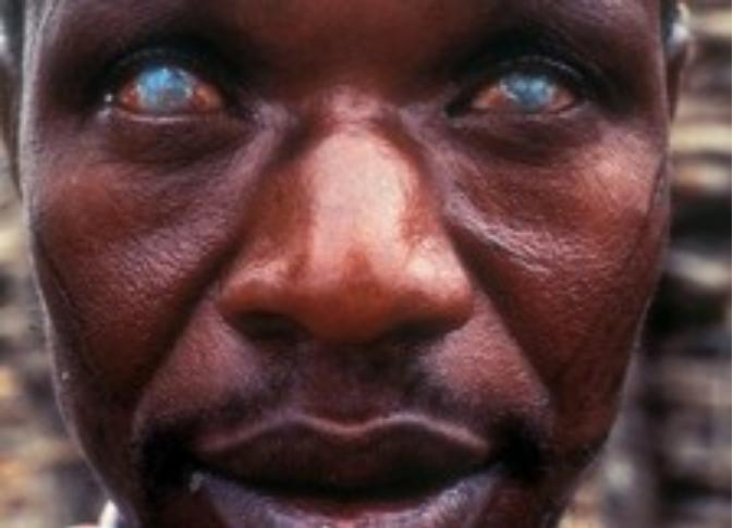 River Blindness What Is Symptoms Treatment Causes
