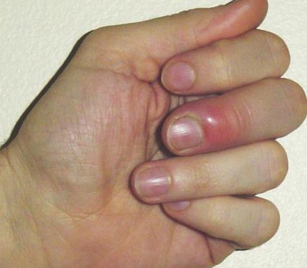 Swollen midle finger Swollen Fingers Causes, Symptoms and Treatment