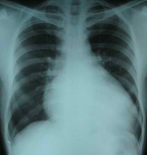 Cardiomegaly Xray picture