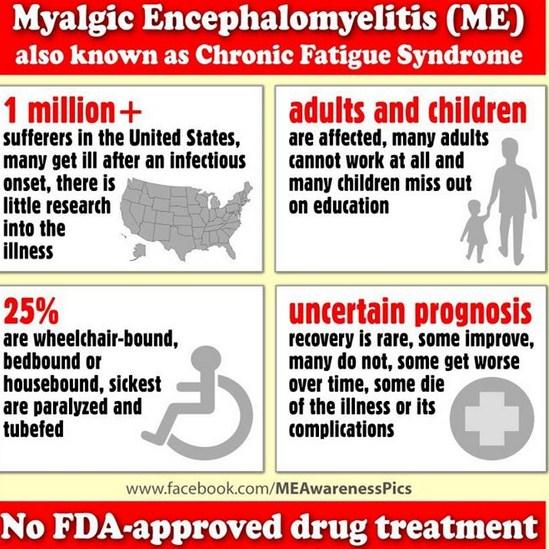 Myalgic encephalitis