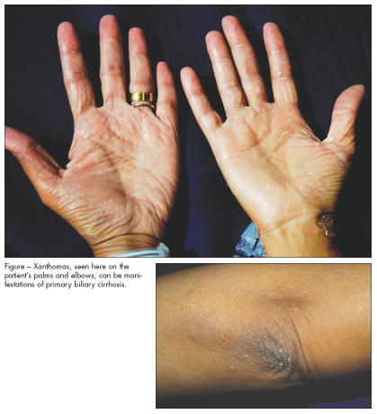 187 Steatorrhea Pictures Causes Symptoms Treatment