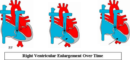 Right Ventricular Hypertrophy picture