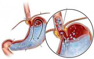 Whipple Disease pics