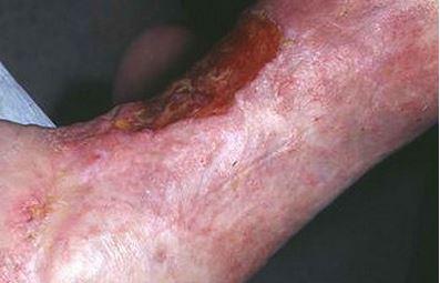 Ulcer on leg