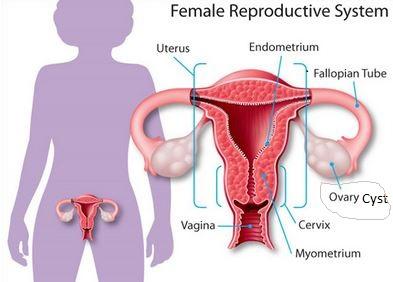 ovarian cyst pain